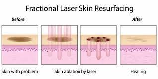 הצערת העור, העלמת קמטים וצלקות והעלמת כתמים באמצעות לייזר Edit