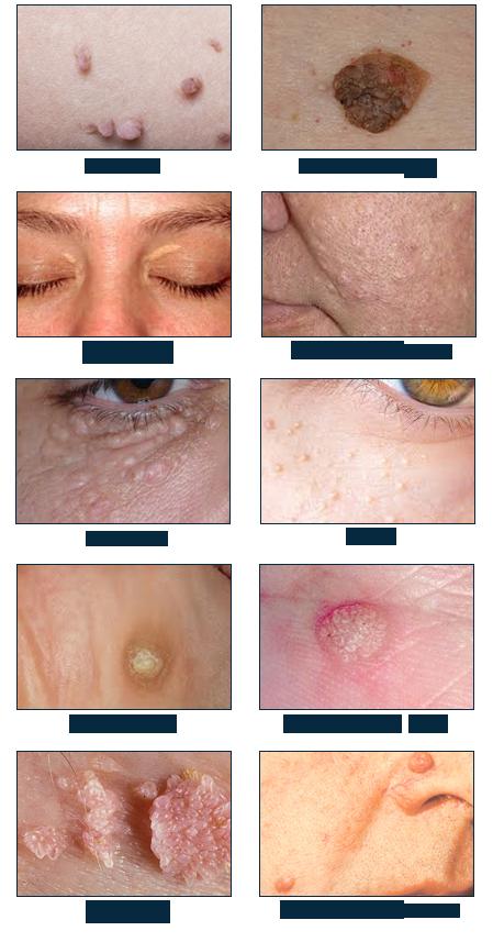 אבחון וטיפולי בנגעי עור